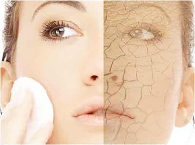 dry-skin-remedies