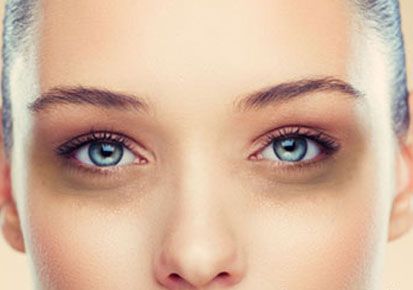 treatment-for-dark-circles-