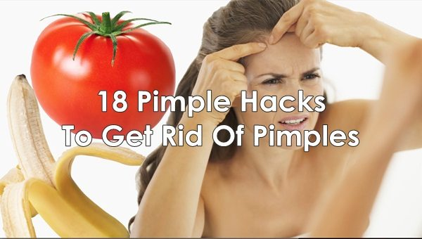 18 Pimple Hacks You Need Try